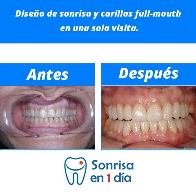 Caso 20 – Diseño de sonrisa y carillas full-mouth en una sola visita.
