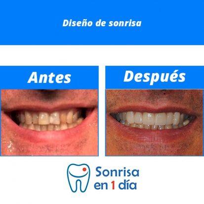 Caso 26 – Diseño de sonrisa.