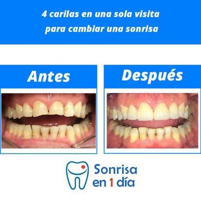 Caso 27 – Implante de 4 carillas de cerámica en una sola visita para cambiar una sonrisa.