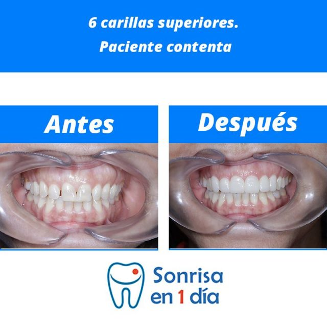 Caso 28 – Implante de 6 carillas de cerámica superiores en una sola visita. Paciente contenta.
