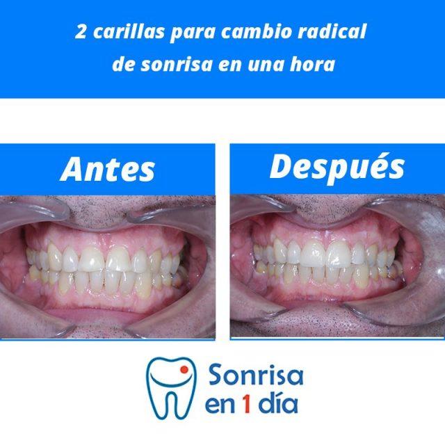 Caso 34 – Implante de 2 carillas para cambio radical de sonrisa en una hora.